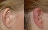 Operacja plastyczna uszu łódź