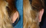 Operacja plastyczna odstających małżowin usznych