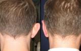 Plastyka odstających uszu